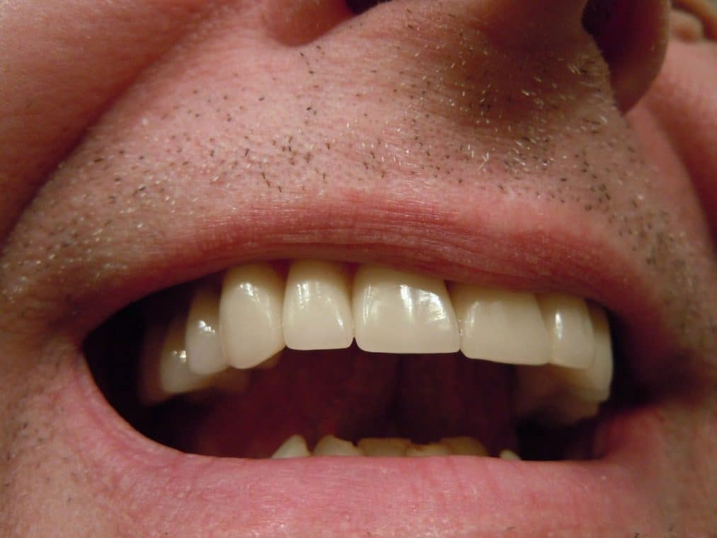crown vs veneers