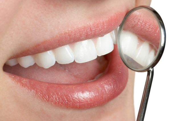 Dental Veneers & Lumineers Services