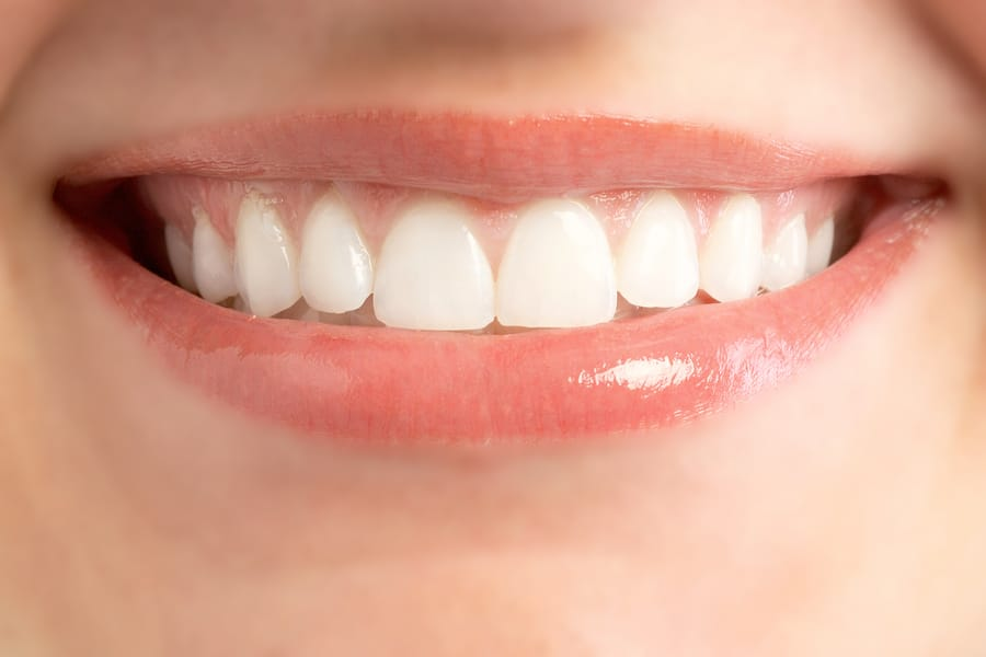 Dental Braces Treatment