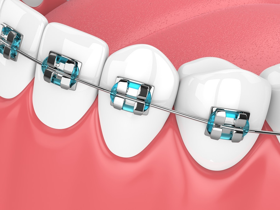 Dental Metal Braces