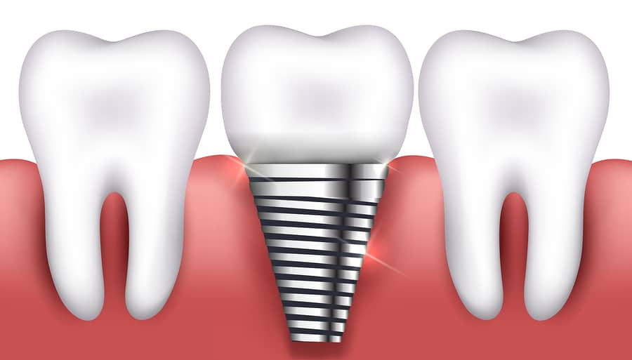 Silver Dental Implants