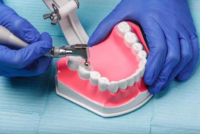 Teeth Reshaping Treatment