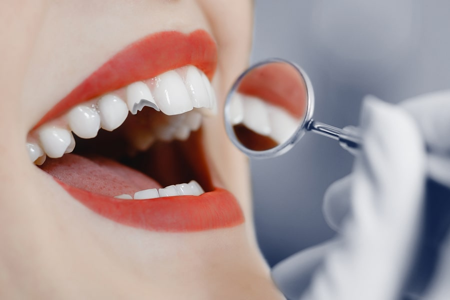 Dental Broken