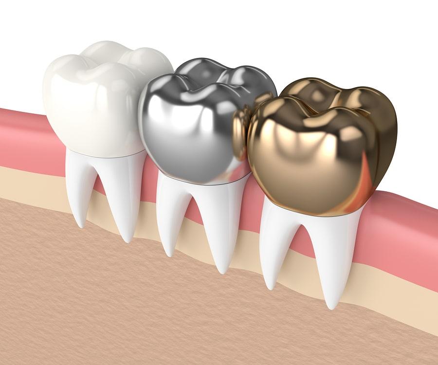 Dental Broken Tooth Repair