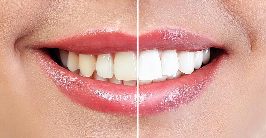Cosmetic Dental Bonding