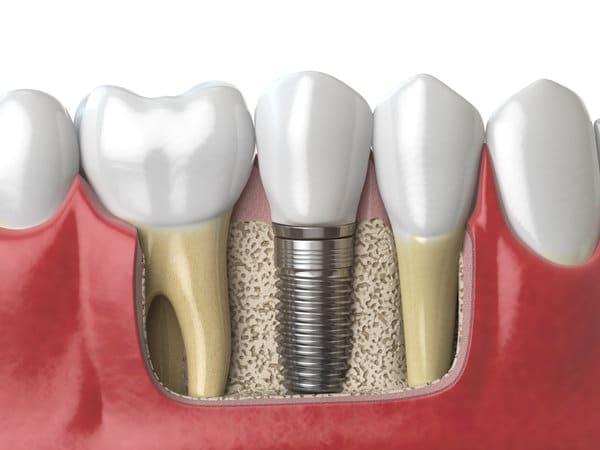 Implant Services