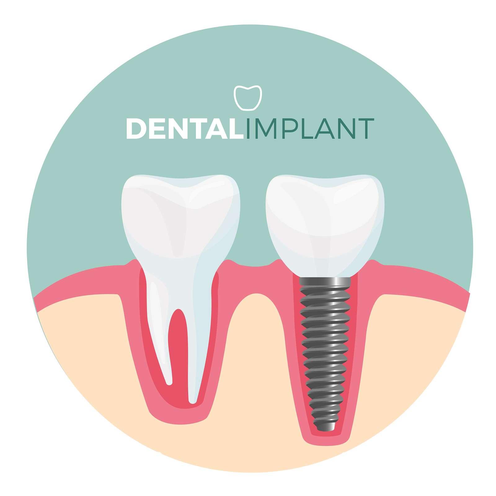 cosmetic teeth surgery