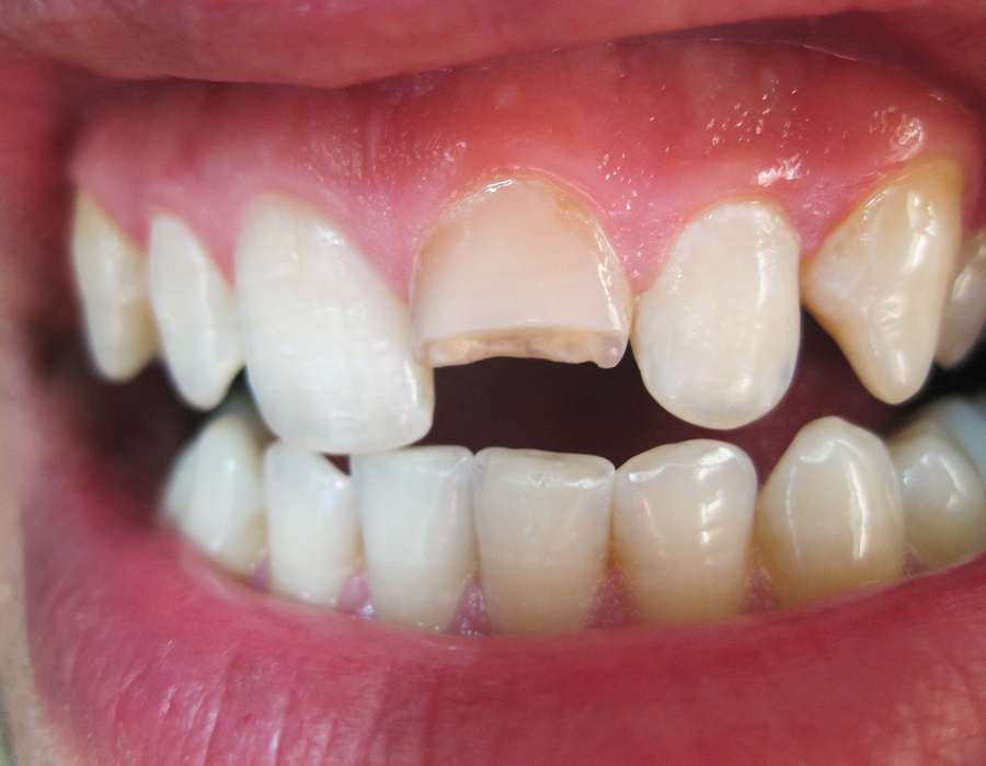 Dental Options for Broken Tooth