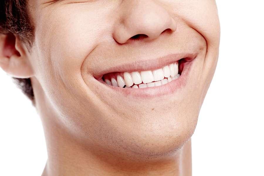 Dental Bonded Retainers in Birmingham