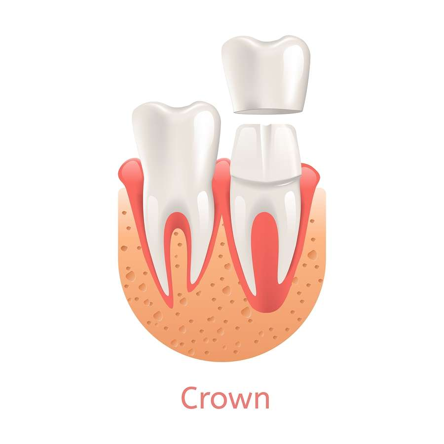 Ceramic or Porcelain Crowns