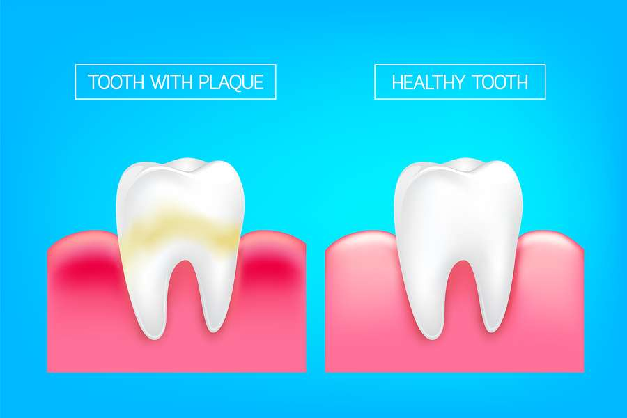 Repair or Replace a Damaged Tooth