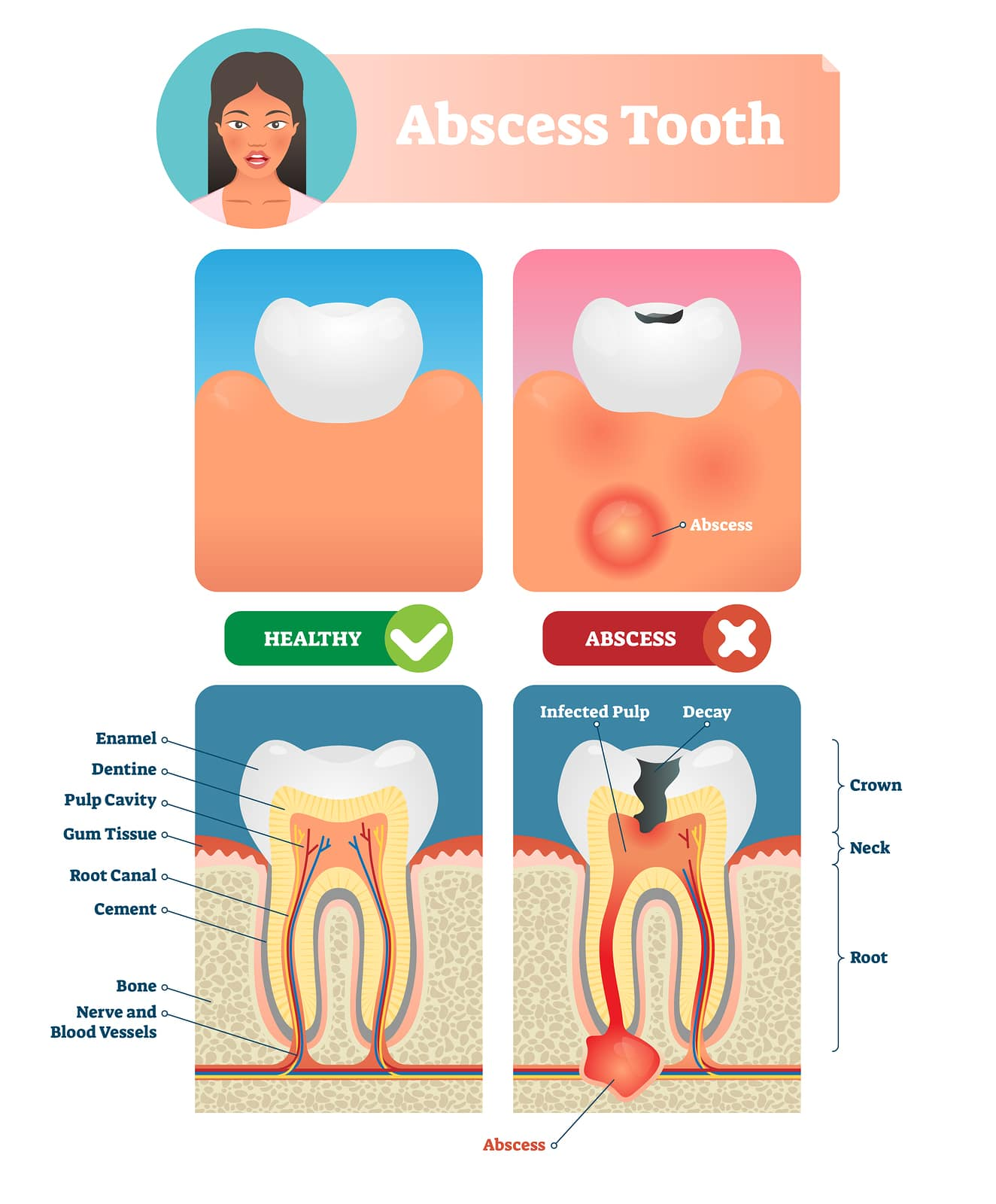 The Root Canal Process Explained - Scott J Owens DDS