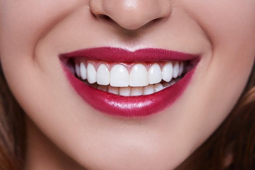 Front Teeth Dental Crowns
