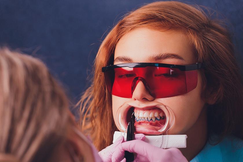 Cost of Teeth Whitening